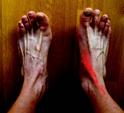 Pierna tendinitis la tibial de